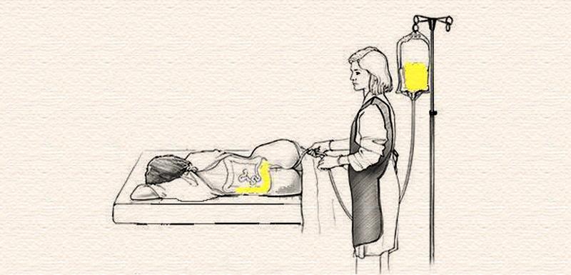 Basti-The-Prime-Treatment-In-Panchakrma