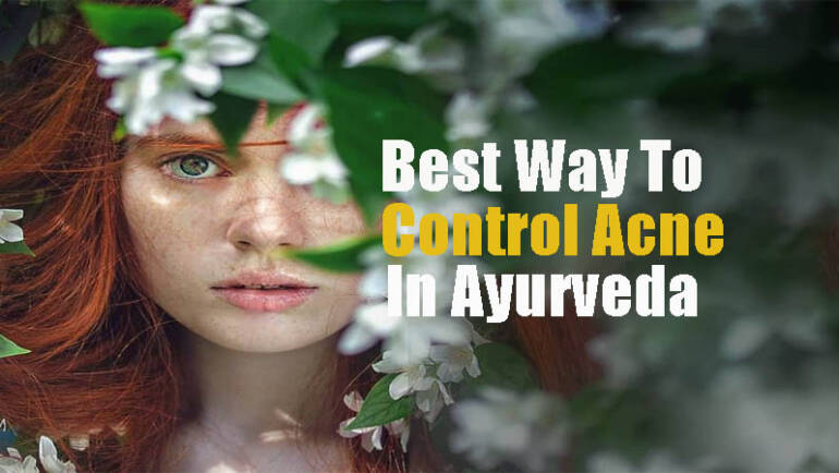 women Best way to control acne in ayurveda women hiding behind green trees and white flower